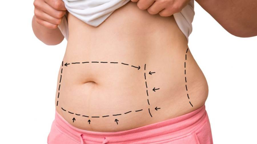 Doctor live | إيجابيات وسلبيات عملية شفط الدهون بالفيزر