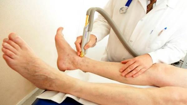 Doctor live | كيف يتم علاج دوالي الساقين بالليزر ؟