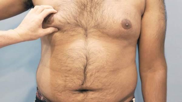 Doctor Live الجراحة هي الأنسب لإزالة التثدي عند الرجال