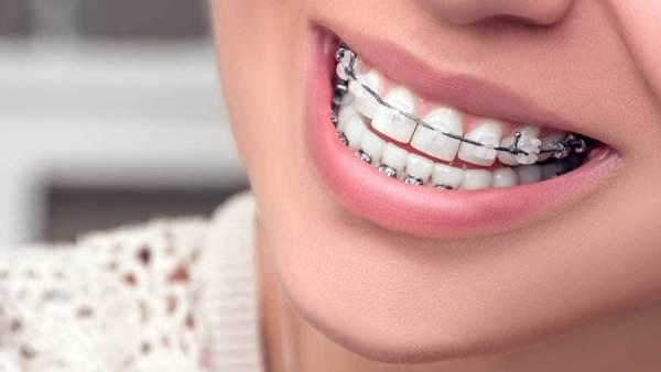 Doctor Live تجميل الأسنان بالتقويم