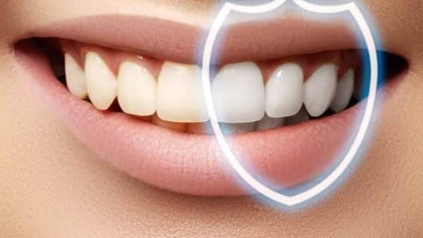 Doctor Live سعر عدسات الأسنان في مصر 2020