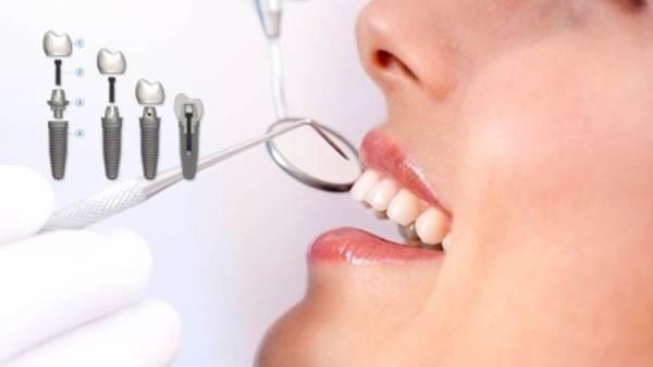 Doctor Live زراعة الأسنان الفورية اختر زرعتك سويسري أو ألماني أو كوري